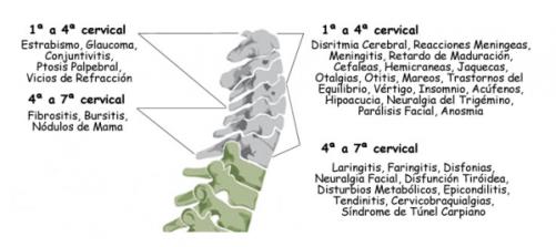 cervicales-e1437973982137