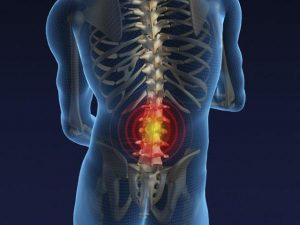 Hernia-discal-lumbar-300x225
